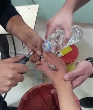 Elazığ'da itfaiyeden yüzük çıkarma operasyonu